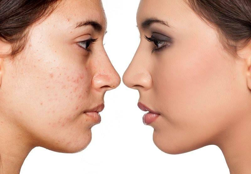 Acne-Prone Skin: