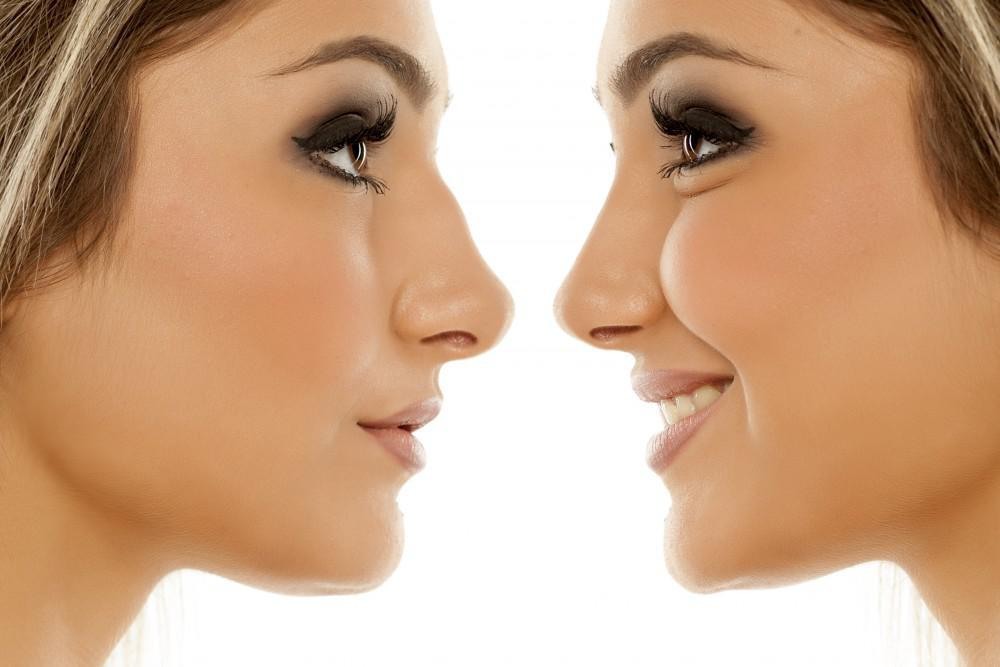 Expectation After Rhinoplasty